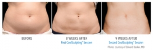 CoolSculpting - Belly Before & After