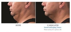 CoolSculpting - Chin Before & After