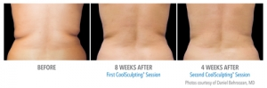CoolSculpting - Flanks Before & After