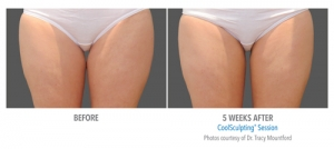CoolSculpting - Thighs Before & After
