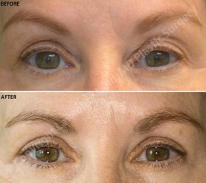 Upper Blepharoplasty - Before and after