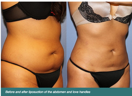 lipo vs CoolSculpting - what's the difference?
