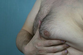man boobs - gynecomastia