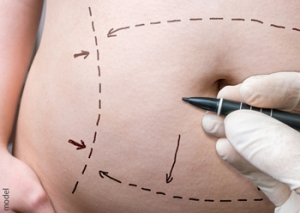 Abdominoplasty (Tummy Tuck) at Iteld Plastic Surgery, with Board Certified plastic surgeon Lawrence Iteld, MD, Chicago