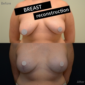 Breast Reconstruction - before and after