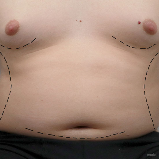 Body contouring services tailored for male patients at Chicago's Iteld Plastic Surgery