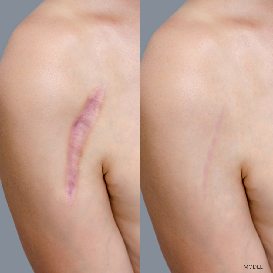 Scar repair at Chicago's Iteld Plastic Surgery