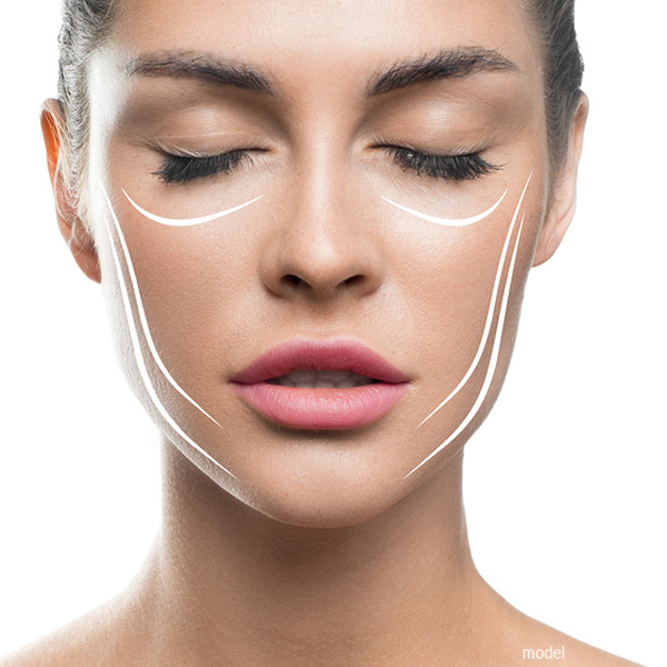 Image of woman's face with marks for facial procedures - all available at Chicago's Iteld Plastic Surgery