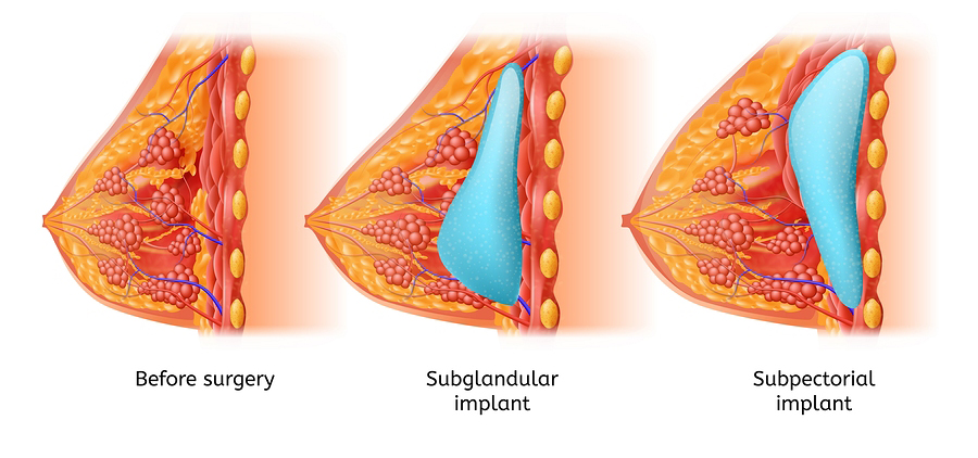 Brest Implant Vector Medical Scheme with Womans Breast Before and After Operation, Implant Placement Anatomy, Cross Section View Illustration. Female Brest Augmentation with Plastic Surgery Procedure