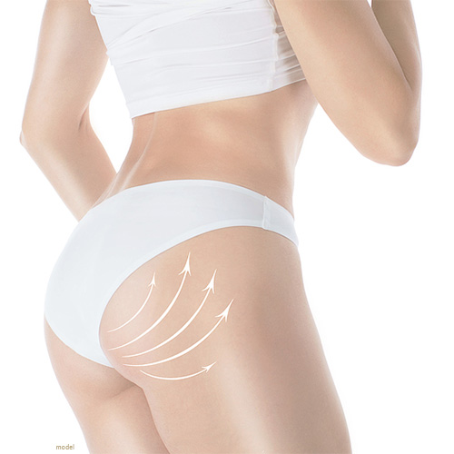 Image of woman with arrows indicating a Brazilian Butt Lift (BBL). A great procedure to get at Chicago's Iteld Plastic Surgery