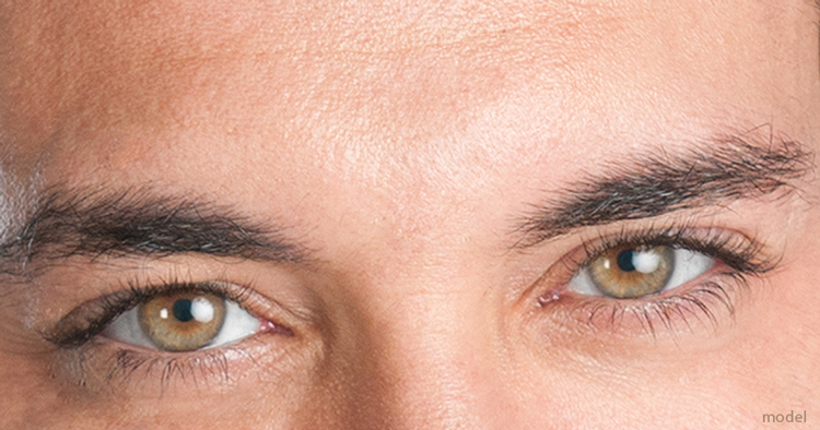 Closeup photo of man's eyes, demonstrating Blepharoplasty, eyelid surgery at Chicago's Iteld Plastic Surgery