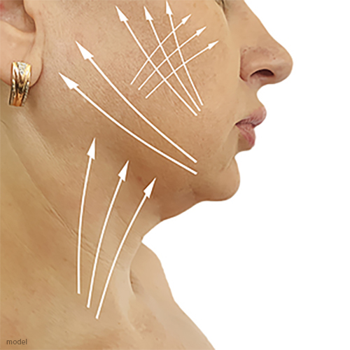 Image of woman's face with arrows indicating a facelift, which you can have performed by Chicago board certified plastic surgeon Lawrence Iteld, MD