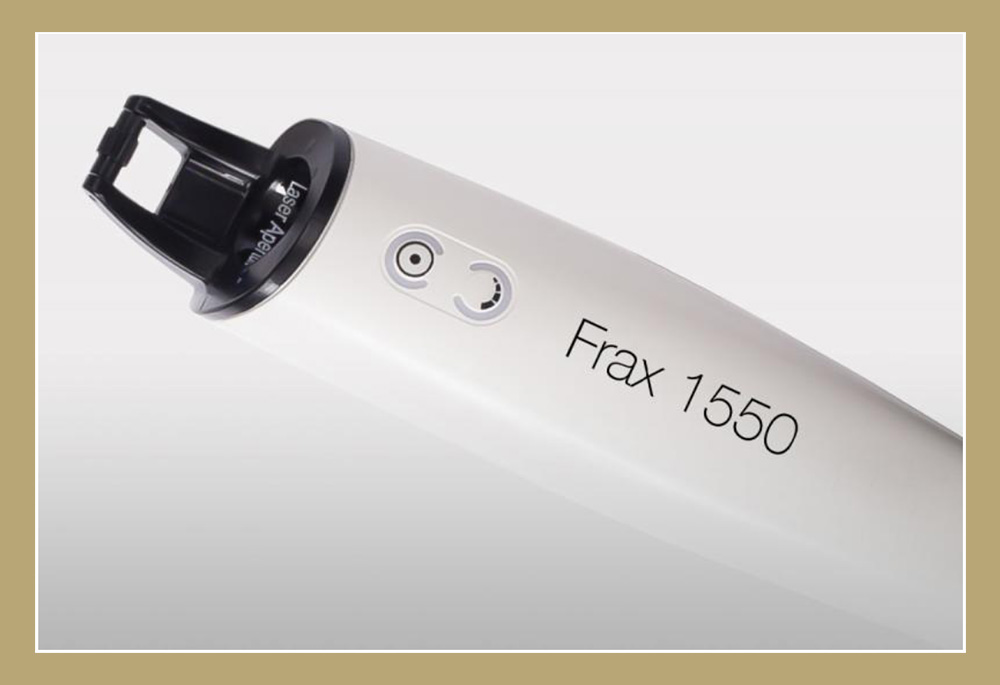 Laser Resurfacing using the Candela Nordlys Frax 1550 at Chicago's Iteld Plastic Surgery for