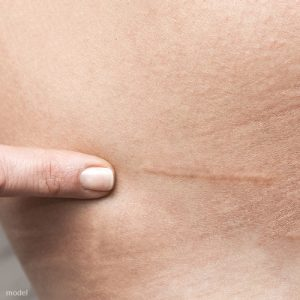 Surgical scars and summer solutions described by Chicago's plastic surgeon Lawrence Iteld, MD